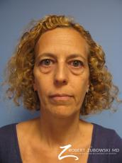 Blepharoplasty: Patient 29 - Before Image