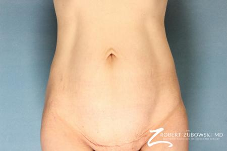 Tummy Tuck: Patient 12 - Before Image 1