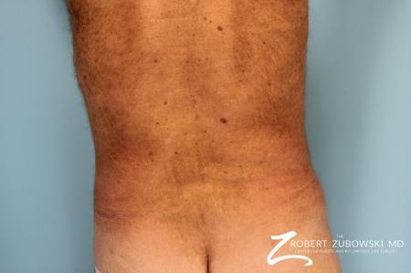Liposuction: Patient 18 - After Image 3