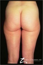Liposuction: Patient 38 - Before Image
