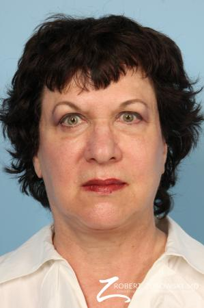 Facelift: Patient 19 - After Image 1