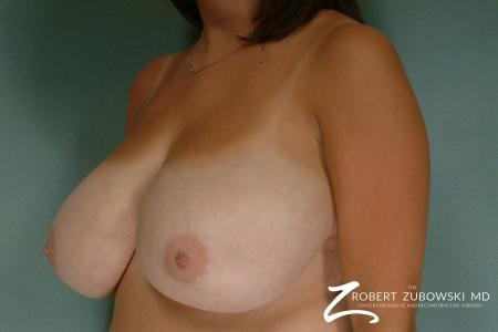 Breast Reduction: Patient 16 - Before and After Image 2