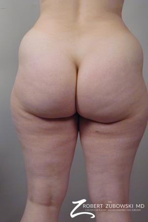 Liposuction: Patient 29 - Before Image 5