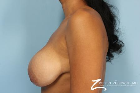 Breast Revision: Patient 2 - Before Image 2