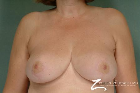 Breast Reduction: Patient 5 - After Image