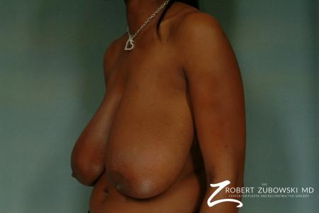 Breast Reduction: Patient 17 - Before and After Image 2