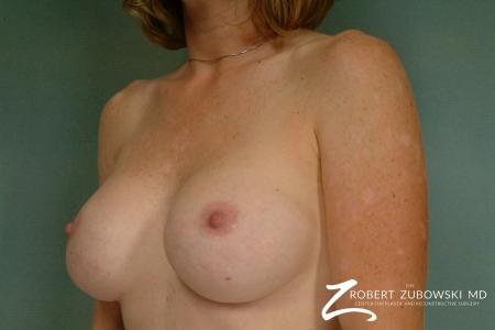 Breast Augmentation: Patient 28 - After Image 2