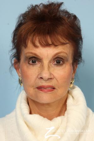 Facelift: Patient 24 - After Image 1