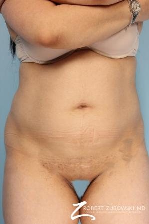 Liposuction: Patient 48 - Before Image 1