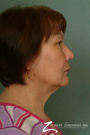 Blepharoplasty: Patient 23 - After Image 2