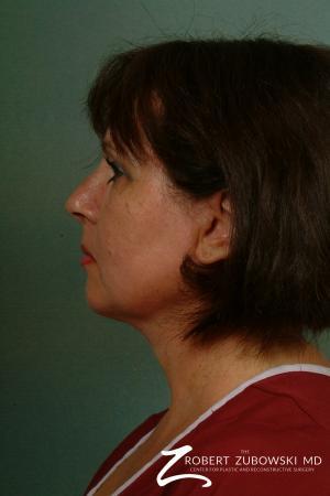 Neck Lift: Patient 8 - After Image 2