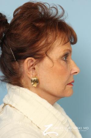 Facelift: Patient 24 - After Image 2