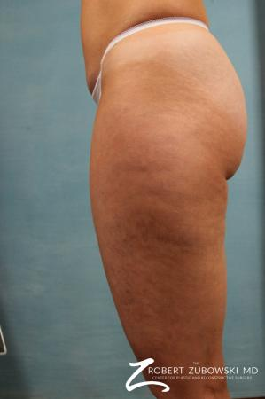Cellulaze: Patient 1 - Before Image 1