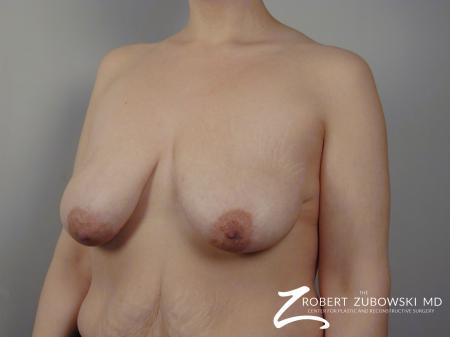 Breast Lift: Patient 1 - Before and After Image 2