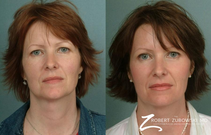 Laser: Patient 6 - Before and After Image