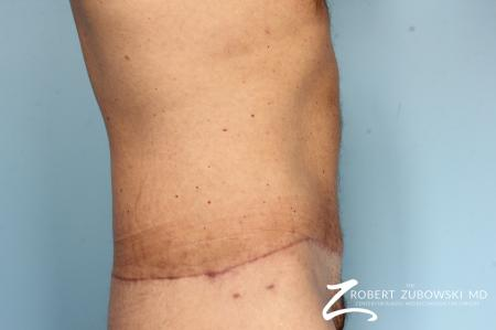 Body Lift: Patient 8 - After Image 3