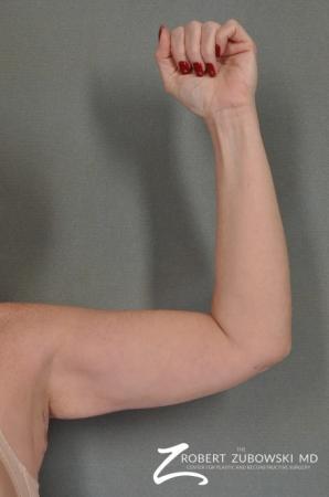 Arm Lift: Patient 1 - After Image 1