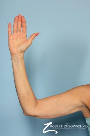Brachioplasty: Patient 1 - After Image 1