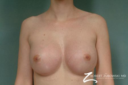Breast Augmentation: Patient 19 - After Image