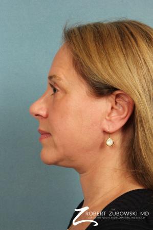 Neck Lift: Patient 5 - After Image 2