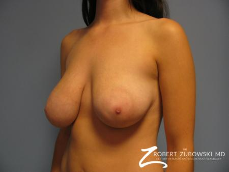 Breast Lift: Patient 10 - Before and After Image 2