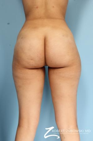 Butt Augmentation: Patient 3 - After Image 2