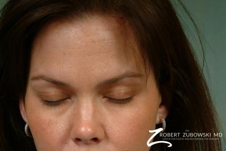 Latisse: Patient 2 - Before Image