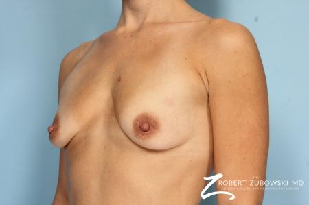 Breast Augmentation: Patient 36 - Before and After Image 2