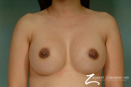 Breast Augmentation: Patient 25 - After Image 1