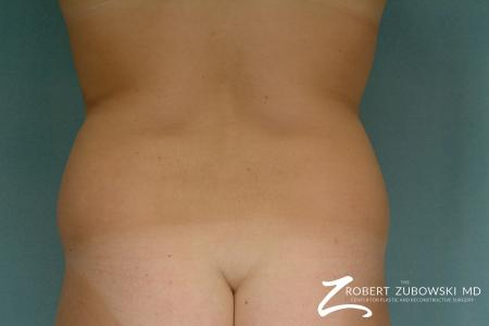 Liposuction: Patient 26 - Before and After Image 3