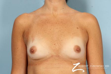Breast Augmentation: Patient 40 - Before Image 1