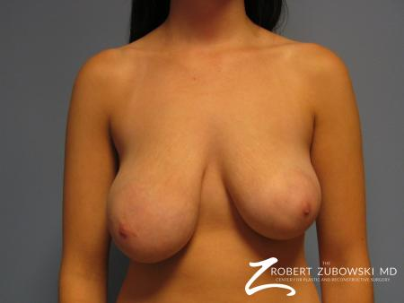 Breast Lift: Patient 10 - Before Image 1
