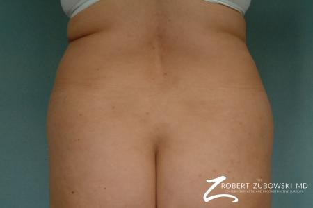 Liposuction: Patient 27 - Before Image