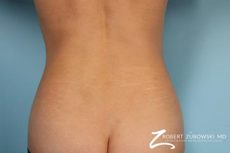 CoolSculpting®: Patient 6 - After Image 1