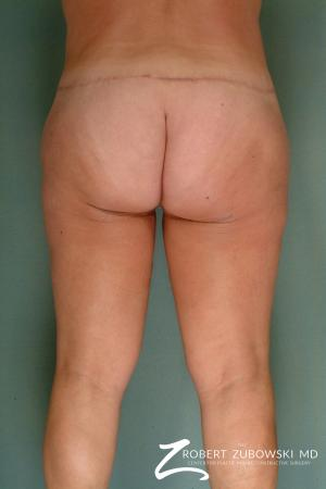 Thigh Lift: Patient 3 - After Image 2