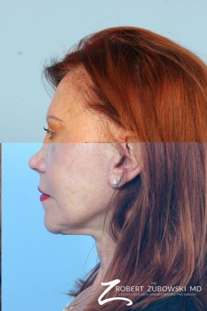 Facelift: Patient 29 - Before Image 2