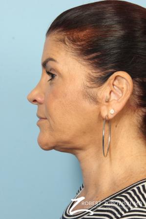 Neck Lift: Patient 10 - After Image 3