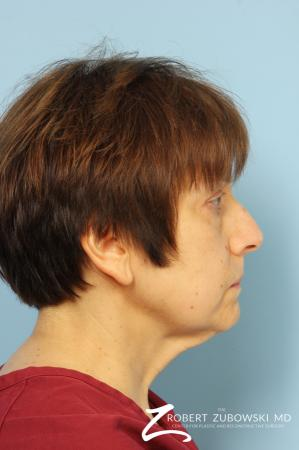 Neck Lift: Patient 1 - Before Image 2