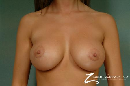 Breast Lift And Augmentation: Patient 15 - After Image 1