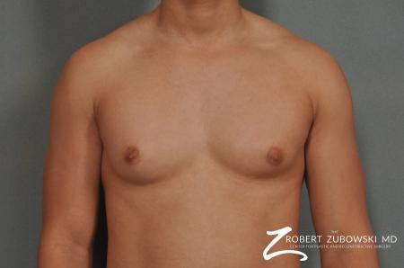 Gynecomastia: Patient 3 - Before Image