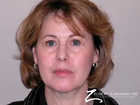 Facelift: Patient 1 - Before Image