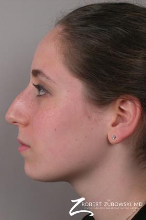 Rhinoplasty: Patient 7 - Before and After Image 2