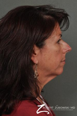 Neck Lift: Patient 4 - Before and After Image 2