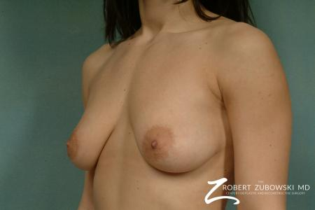 Breast Lift And Augmentation: Patient 3 - Before and After Image 2