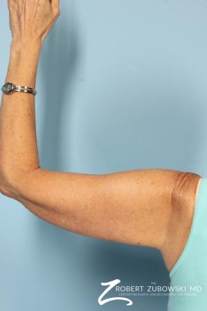 Brachioplasty: Patient 1 - After Image 4
