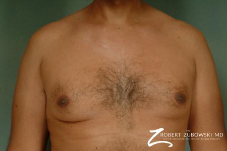 Gynecomastia: Patient 8 - Before Image