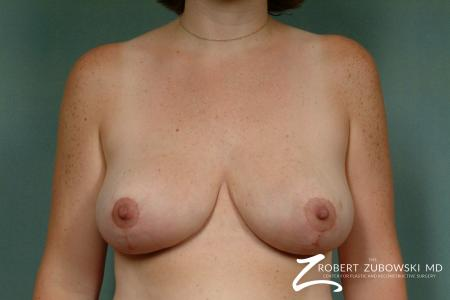 Breast Reduction: Patient 6 - After Image