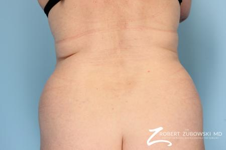 Liposuction: Patient 14 - Before Image