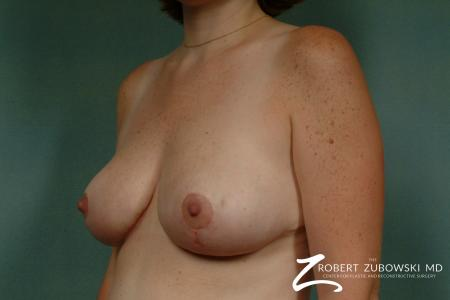 Breast Reduction: Patient 6 - After Image 2