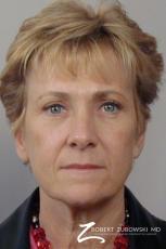 Blepharoplasty: Patient 6 - After Image